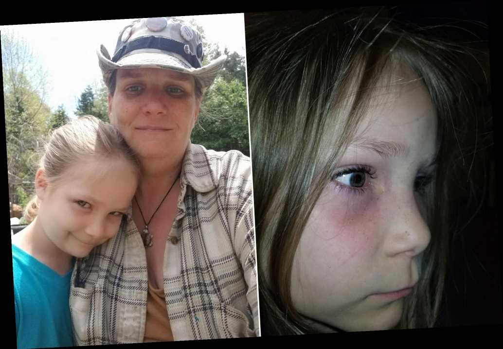 Little girl names dead beetle that was in her eye for 9 hours
