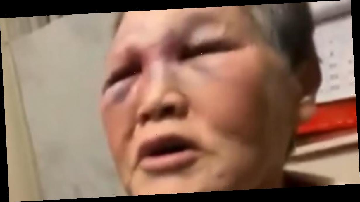 Elderly Asian woman attacked in San Francisco fights back, sends alleged attacker to hospital